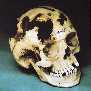 Was Knochenmetastasen anrichten (Foto: L.Patzak Museumsshop)